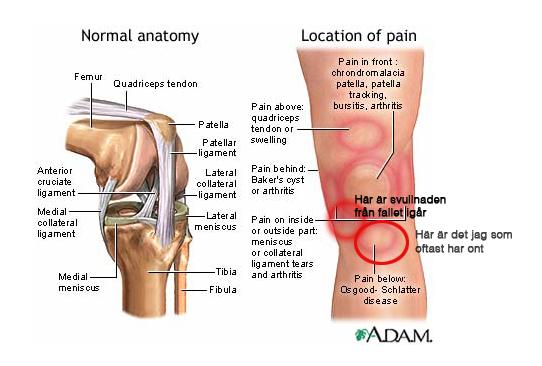 smärta över knäskålen